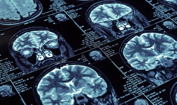 Covid persistente: las secuelas neurocognitivas permanecen hasta 12 semanas