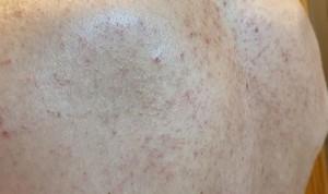 La segunda ola de Covid no genera los síntomas en la piel de la primera