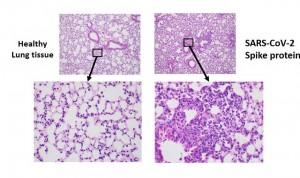 La proteína pico del SARS-CoV-2 tiene potencial para causar daño pulmonar