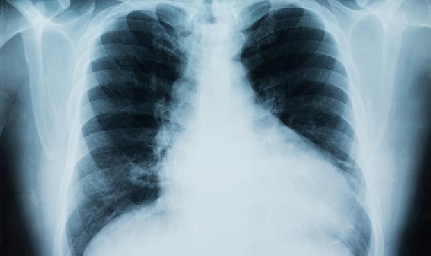 Inesperada respuesta inmune del Covid-19 en los pulmones