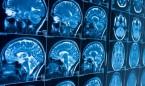 Covid secuelas: nuevas evidencias de que provoca inflamación en el cerebro