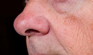 Covid: un spray nasal 'hermano' del Betadine, a prueba como tratamiento