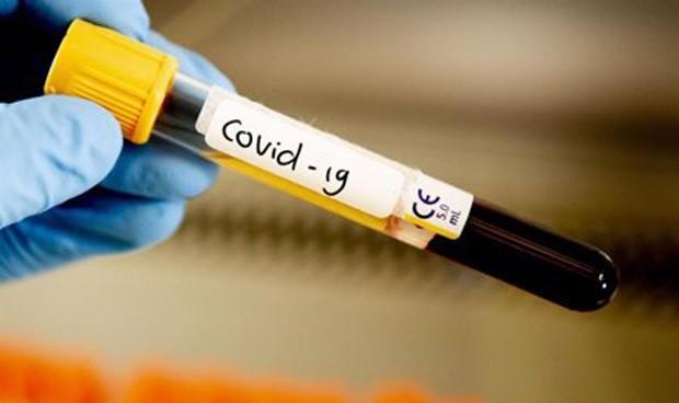 Covid: vitamina C intravenosa en paciente UCI, opción de terapia de apoyo