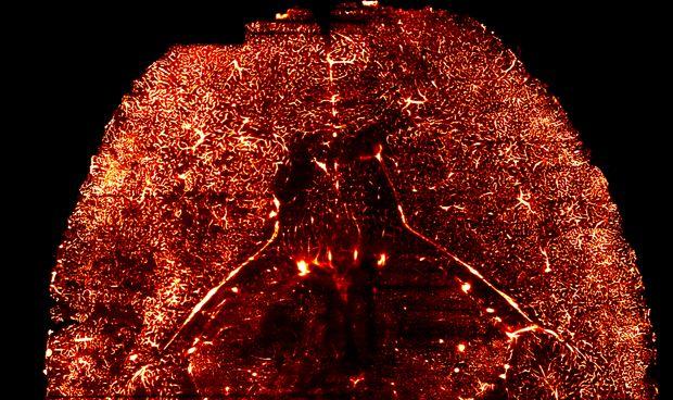 Crean un atlas molecular de los vasos sanguíneos del cerebro