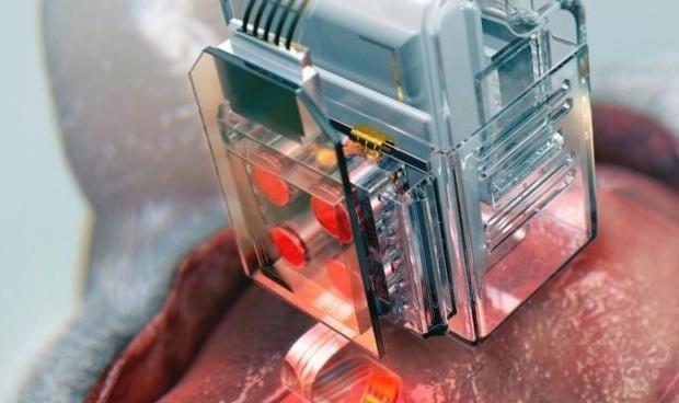Crean un implante para analizar las neuronas que se maneja con el móvil