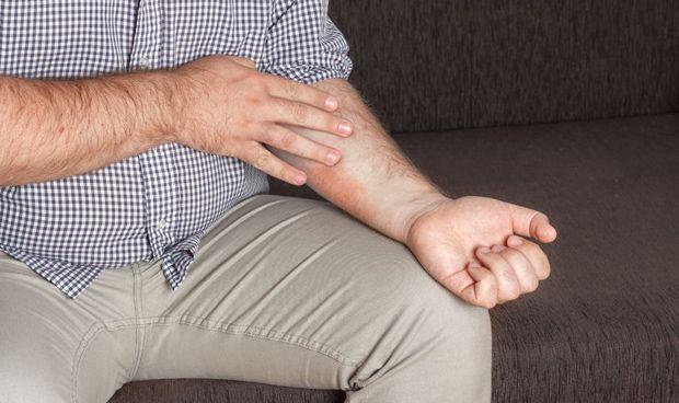 Dermatitis atópica, tan habitual como el constipado en invierno