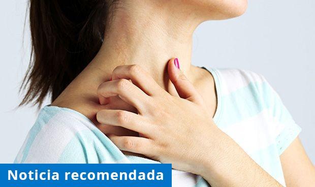 La exigencia del tratamiento, la dificultad del manejo de la dermatitis