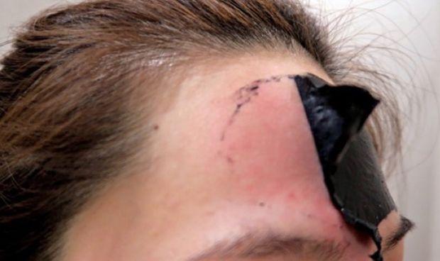 """Dermatología avisa: """"La mascarilla negra puede crear ampollas y cicatrices"""""""