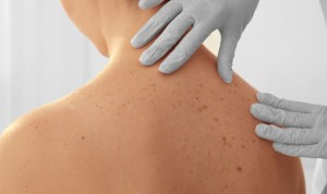 La evaluación dermatológica de cualquier cáncer mejora la calidad de vida