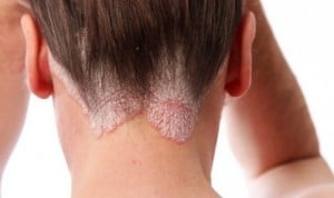 Dermatología pide que la psoriasis se contemple como enfermedad sistémica