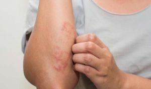 Dermatología 'pone la cruz' a Facebook e Instagram por vetar la psoriasis