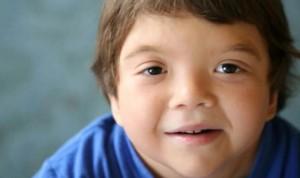 Desarrollan un tratamiento para tratar el síndrome Noonan en bebés