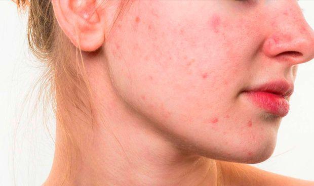 Descubren anticuerpos que neutralizan la inflamación del acné común