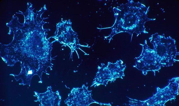 Descubren cómo abrasar células cancerígenas con nanopartículas
