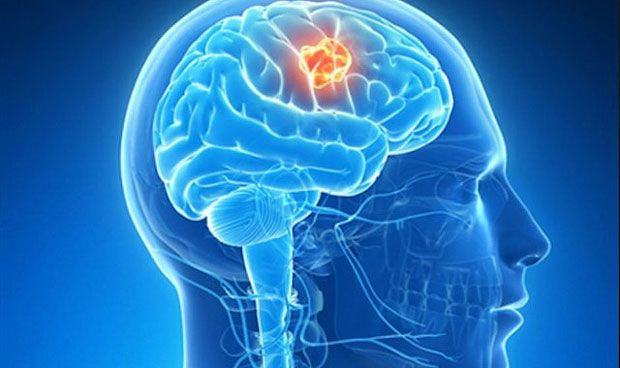 Descubren el secreto de la 'inmortalidad' del cáncer cerebral