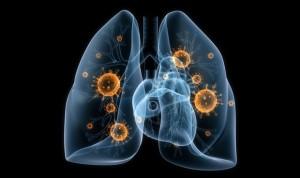Descubren por qué algunos cánceres de pulmón resisten la quimioterapia