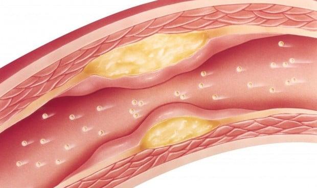 Descubren por qué los fármacos contra el colesterol generan dolor muscular