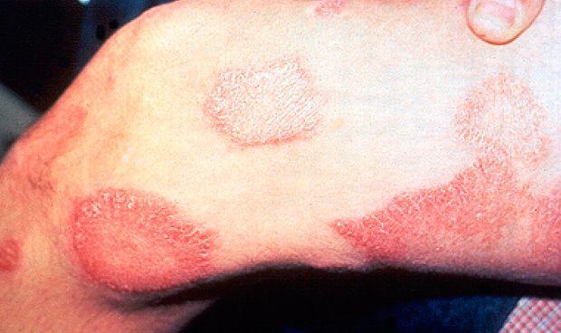 Descubren que analizar el genoma permite saber más del origen de la lepra
