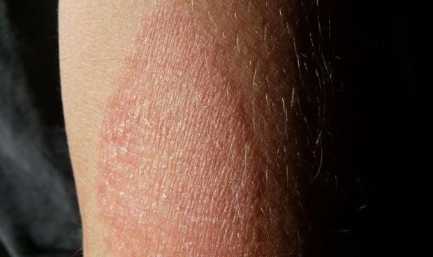 Descubren qué causa la piel seca e inflamada en pacientes con eczema