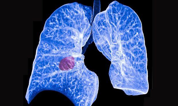 Descubren un nuevo tipo de cáncer de pulmón de células pequeñas