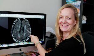 Descubren un vínculo entre la apnea obstructiva del sueño y la demencia