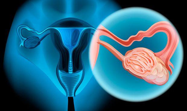 Descubren una mutación del cáncer de ovario que puede transmitir el padre