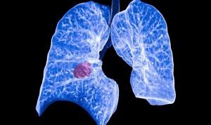 Descubren una vía del cáncer de pulmón para hacerse resistente