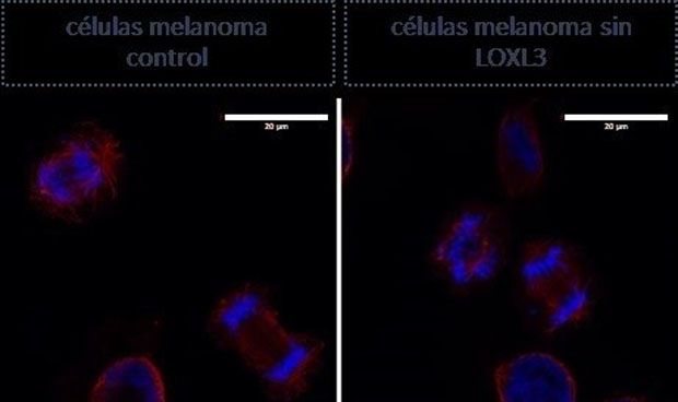 Detectan la proteína que las células del melanoma necesitan para sobrevivir