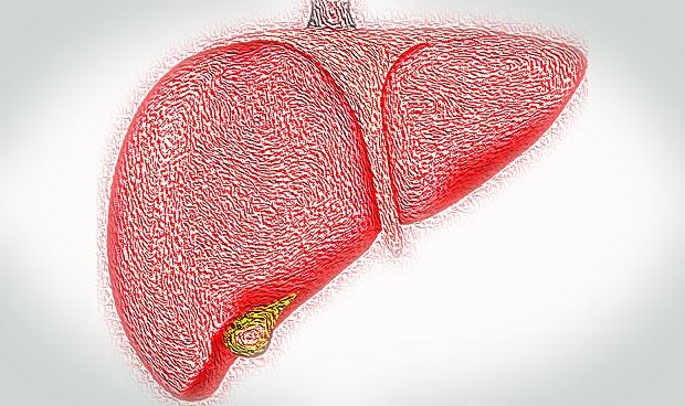 Diagnóstico precoz en colangitis biliar: clave para no ser incapacitante