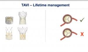 Diseño y colocación de la válvula, claves en el reacceso coronario en TAVI