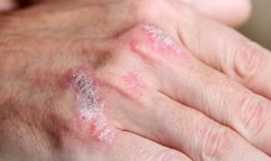 Doble aval para Tremfya (Janssen) como terapia en artritis psoriásica