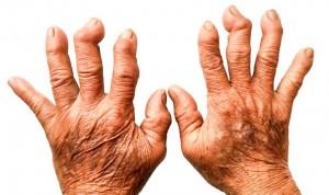 Dos nuevos fármacos en artritis reumatoide se muestran eficaces y seguros