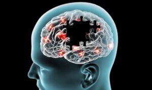 Dos proteínas consiguen regenerar los daños del párkinson en fase temprana