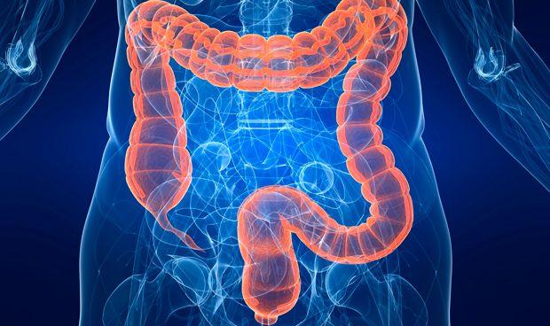 Dos tipos de bacterias intervienen en el cáncer de colon hereditario