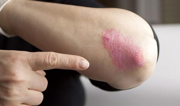 El 57% de pacientes con psoriasis no consigue blanquear sus lesiones