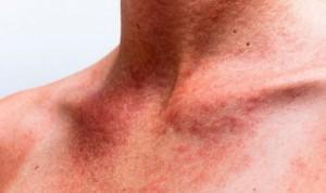 El 64% de las personas que tienen una enfermedad en la piel no lo saben