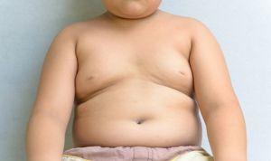 El 70% de los padres no es consciente del sobrepeso de sus hijos