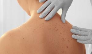 El ADN puede revelar el riesgo de sufrir un melanoma antes que los lunares