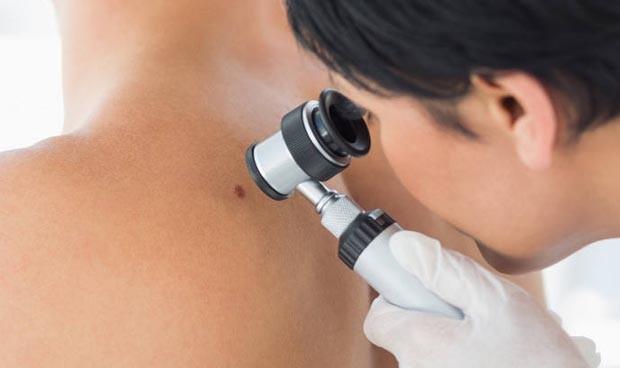 El apoyo oncodermatológico mejora la calidad de vida del paciente de cáncer