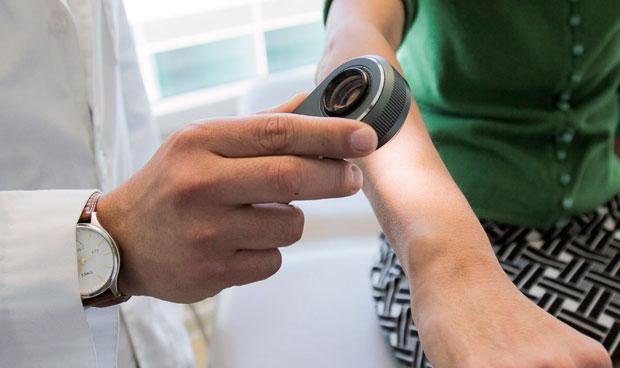El big data se pone a nivel del dermatólogo en detección de cáncer de piel
