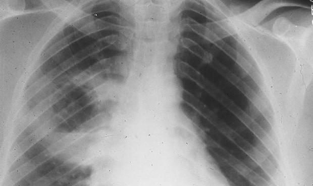 El bloqueo de una interleuquina revierte la fibrosis pulmonar en ratones