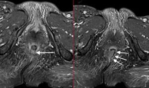 """El bloqueo del nervio pudendo guiado por imágenes es """"seguro y eficaz"""""""