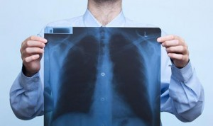 El código TEP reduce la mortalidad en pacientes con tromboembolia pulmonar