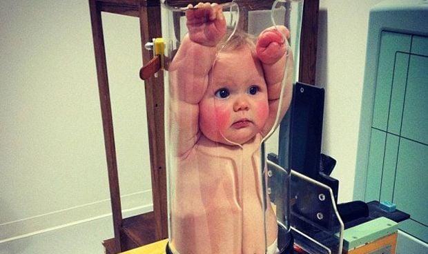 El inquietante prototipo para que el bebé no se mueva en una radiografía