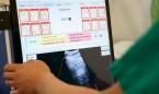 El CSIC crea un ecógrafo pulmonar de última generación frente al Covid-19