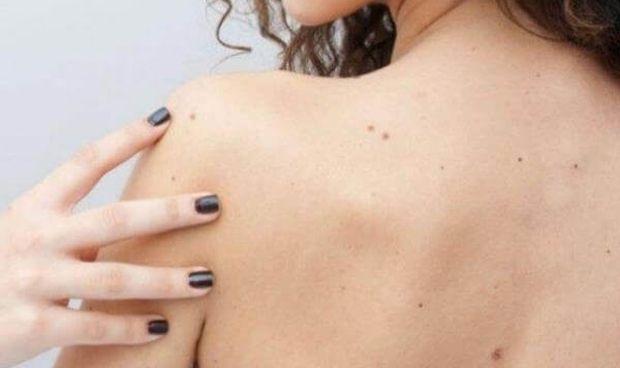 El diagnóstico tardío del melanoma puede tener una mortalidad de un 60%
