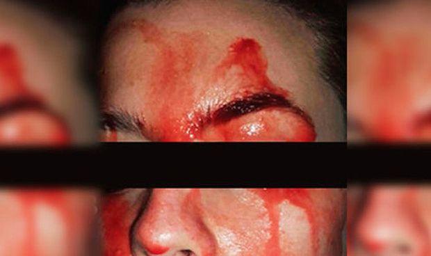 El diagnóstico y tratamiento de la joven que suda sangre