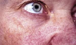 El eritema facial y la telangiectasia responden mal al tratamiento de luz