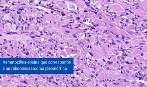 El H. Sant Pau, acreditado para estudiar biopsias de hueso y partes blandas