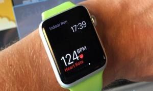 """El incordio del Apple Watch: está """"saturando"""" el hospital"""